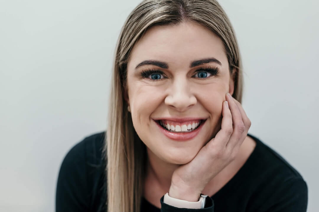 Woman resting head on hand smiling to show white teeth