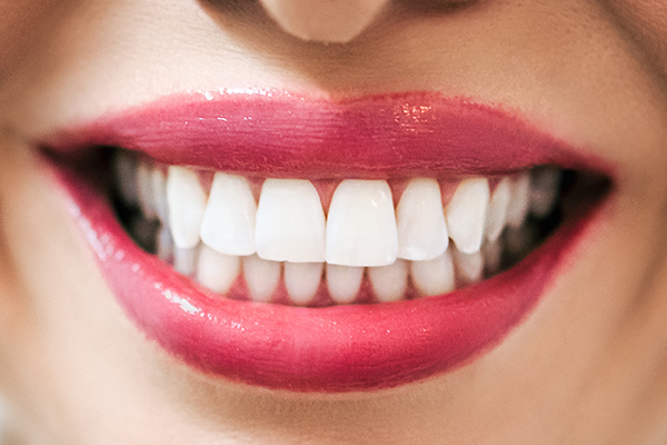 Close up of teeth after being whitened