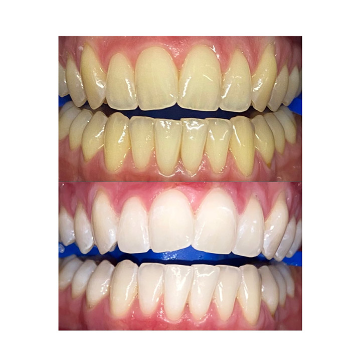 Before and after image of teeth whitening results in Traralgon