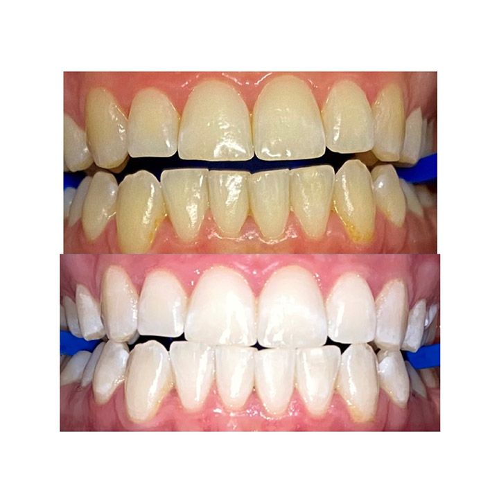 Before and after image of teeth whitening results using zoom