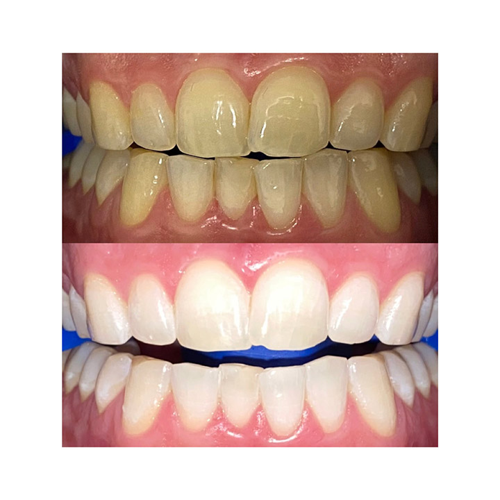 Before and after image of good teeth whitening results