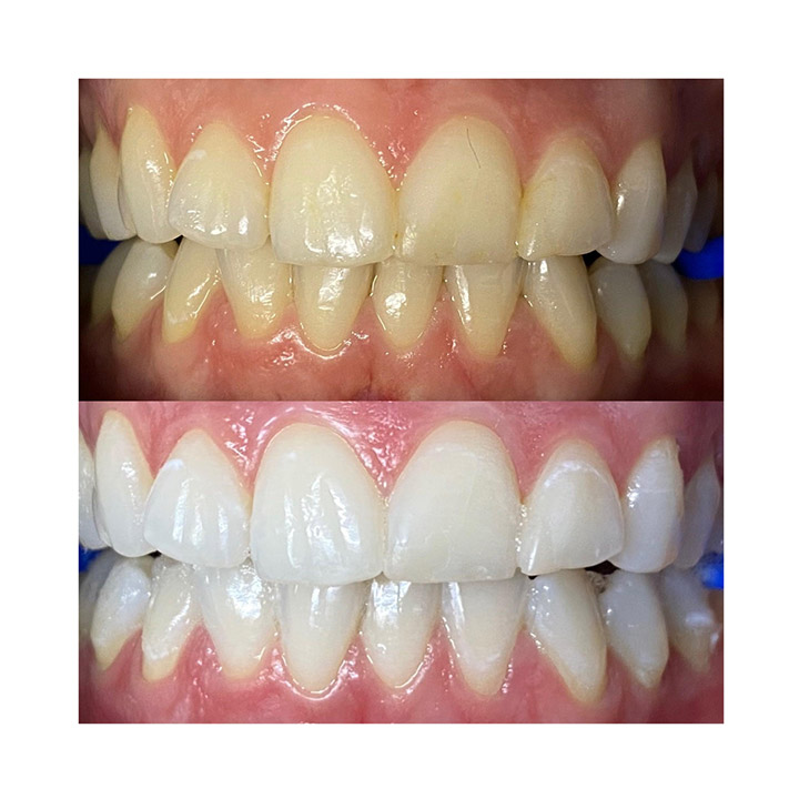 Before and after image of teeth post whitening